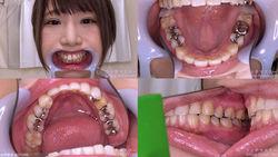 【歯フェチ】乙アリスちゃんの歯を観察しました!