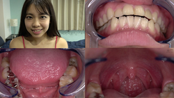 [Tooth / Mouth] Popular actress Kaede Nagano Chan's teeth / uvula observation! !!