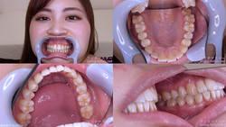 【歯フェチ】望月あやかちゃんの歯を観察しました!
